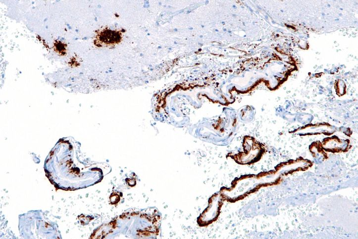 CC BY-SA 3.0view terms File:Cerebral amyloid angiopathy -2b- amyloid beta - intermed mag - cropped.jpg Uploaded: 11 December 2010